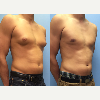 29 year old man treated with Male Breast Reduction before 3174602