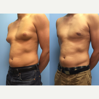 29 year old man treated with Male Breast Reduction after 3174602