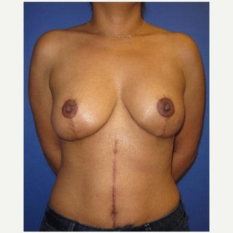 37 year old woman treated with Breast Lift after 2331078