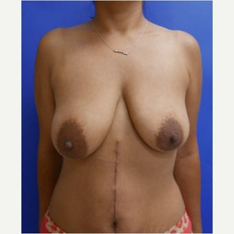 37 year old woman treated with Breast Lift before 2331078