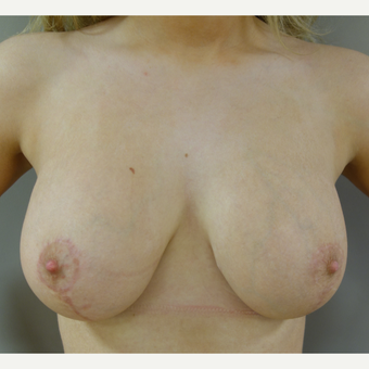 25-34 year old woman treated with Breast Lift with Implants after 3142632