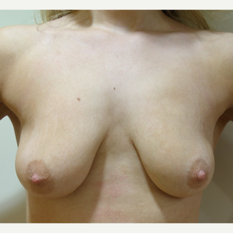 25-34 year old woman treated with Breast Lift with Implants before 3142632
