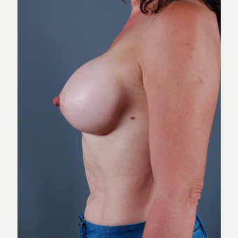 45-54 year old woman treated with Breast Augmentation after 3310753