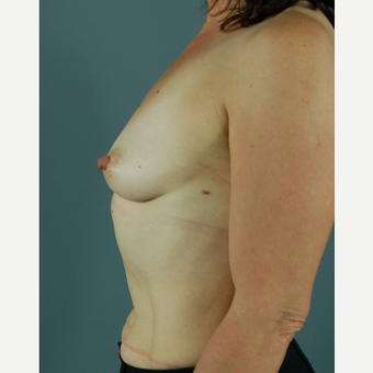 45-54 year old woman treated with Breast Augmentation before 3310753