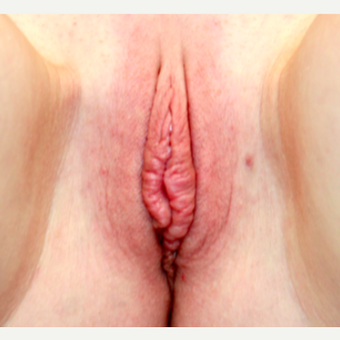 18-24 year old woman treated with Labiaplasty