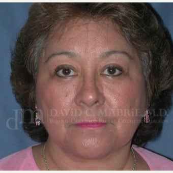 Upper Eyelid Surgery after 1843332