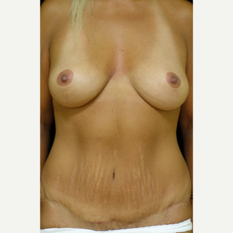 45-54 year old woman treated with Mommy Makeover after 3338558