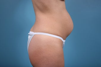 Abdominoplasty 549824