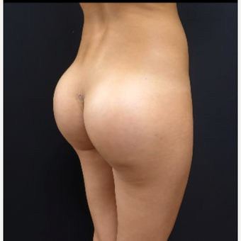25-34 year old woman treated with Butt Augmentation after 3033228
