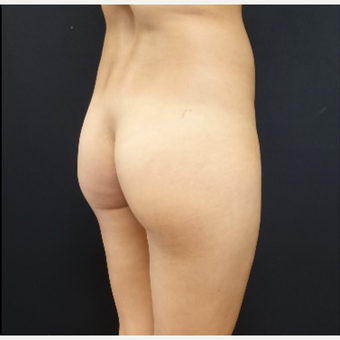 25-34 year old woman treated with Butt Augmentation before 3033228