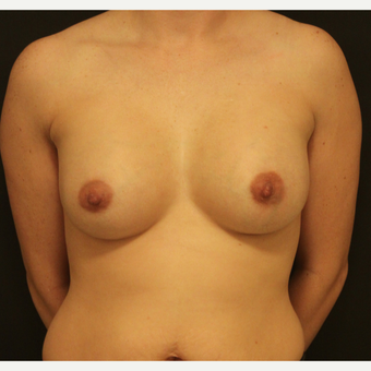 25-34 year old woman treated with Breast Augmentation after 3731652