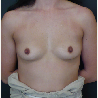 25-34 year old woman treated with Breast Augmentation before 3731652