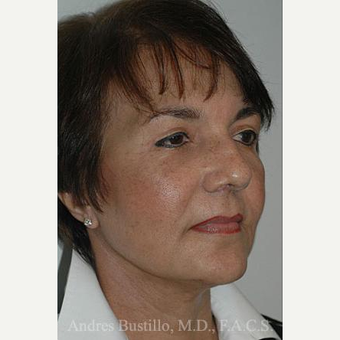 57 year old woman treated with Facelift after 3486356