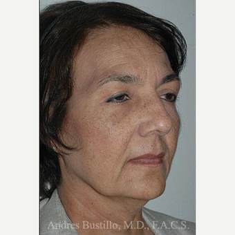 57 year old woman treated with Facelift before 3486356
