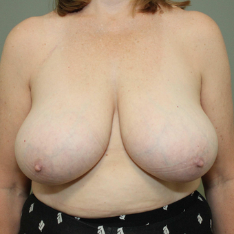 45-54 year old woman treated with Breast Reduction before 3069773