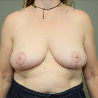 45-54 year old woman treated with Breast Reduction after 3069773