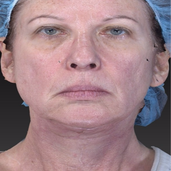 65-74 year old woman treated with Neck Lift with Laser Lift for jaw line tightening after 3266995