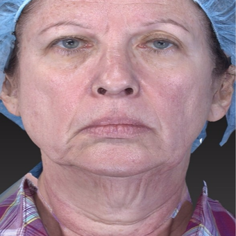 65-74 year old woman treated with Neck Lift with Laser Lift for jaw line tightening before 3266995