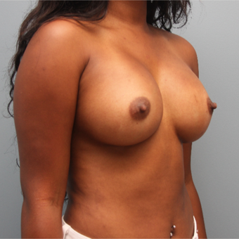Sientra Breast Implants 435cc Silicone after 3544363