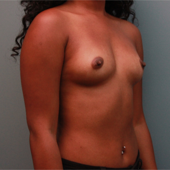 Sientra Breast Implants 435cc Silicone before 3544363