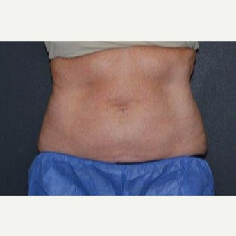 45-54 year old woman treated with CoolSculpting after 1820819