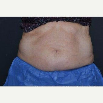 45-54 year old woman treated with CoolSculpting before 1820819