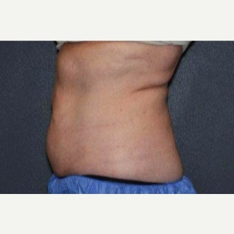 45-54 year old woman treated with CoolSculpting 1820819