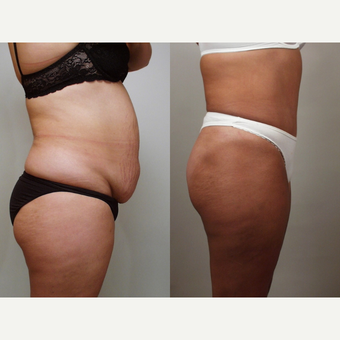 35-44 year old woman treated with Tummy Tuck after 3658549