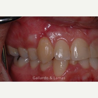 25-34 year old man treated with Gum Lift after 3075185