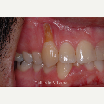 25-34 year old man treated with Gum Lift before 3075185