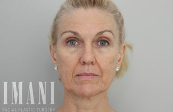 55-64 year old woman treated with Non Surgical Face Lift before 2580156