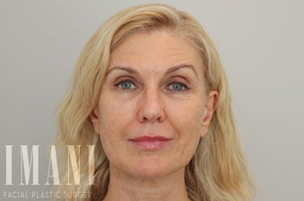 55-64 year old woman treated with Non Surgical Face Lift after 2580156