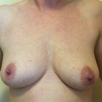 35-44 year old woman treated with Breast Augmentation before 3479797