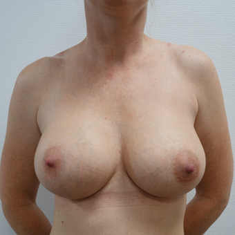 35-44 year old woman treated with Breast Augmentation after 3479797