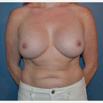 25-34 year old woman treated with Breast Augmentation after 3408266
