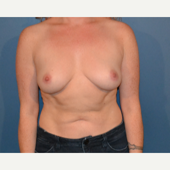 25-34 year old woman treated with Breast Augmentation before 3408266