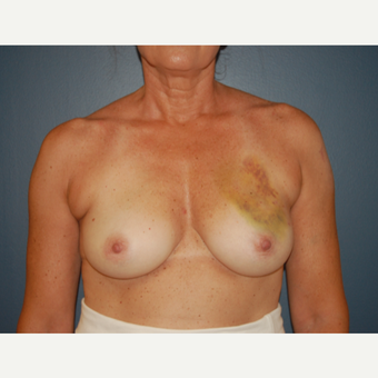 45-54 year old woman treated with Breast Reconstruction before 3446617