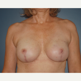 45-54 year old woman treated with Breast Reconstruction after 3446617