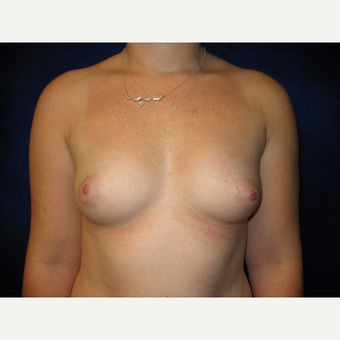 25-34 year old woman treated with Breast Implants before 3727110