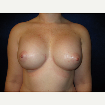 25-34 year old woman treated with Breast Implants after 3727110