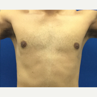 Male Breast Reduction using laser liposuction after 3221104