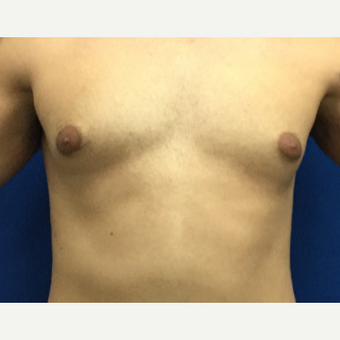 Male Breast Reduction using laser liposuction before 3221104