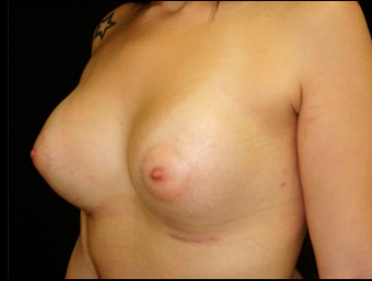 25-34 year old woman treated with Breast Augmentation after 3817584