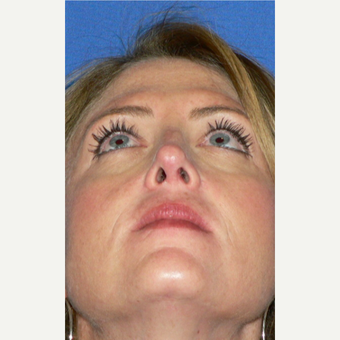 25-34 year old woman treated with Rhinoplasty after 3002132