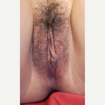 18-24 year old woman treated with Labiaplasty before 3743904