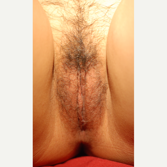 18-24 year old woman treated with Labiaplasty after 3743904