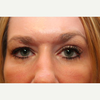 Eyelid Surgery after 3319318
