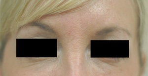 Bags under eyes before and after pictures Juvederm after 204772