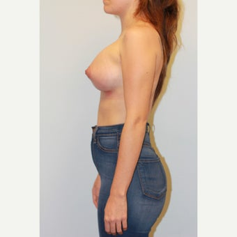 25-34 year old woman treated with Breast Augmentation after 3027417