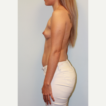 25-34 year old woman treated with Breast Augmentation before 3027417